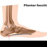 Plantar Fasciitis – What is it?