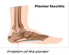 Plantar Fasciitis - What is it